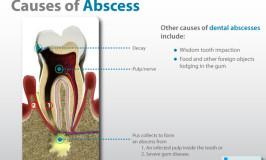 Gum Abscess Treatment – Understanding Your Options