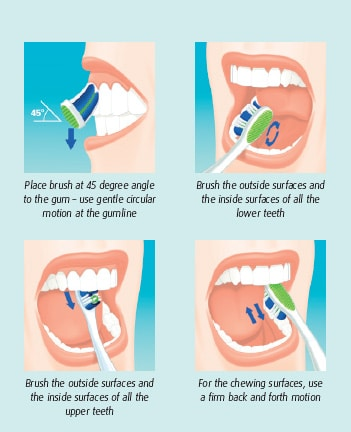 5 Home Remedies to Remove Tartar from Teeth At Home Fast