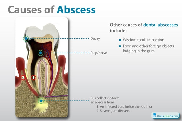 Abscess Tooth Treatment – Understanding Your Options